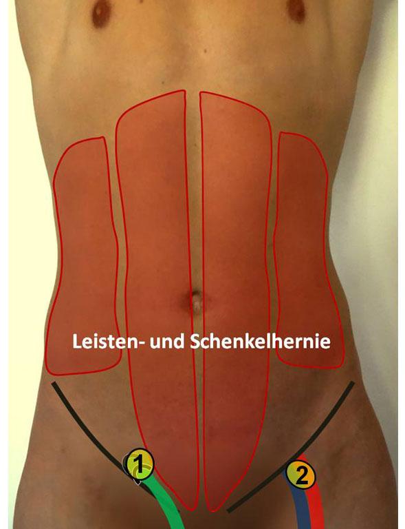Leistenbruch OP in Nürnberg: klinik-hallerwiese.de