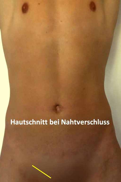 operation leistenbruch: